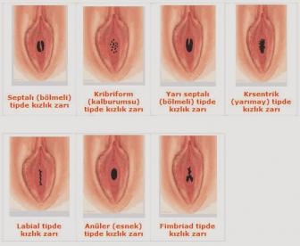 WHAT ARE THE SHAPES OF THE HYMEN? The opening of the hymen is generally circular or crescent-shaped. Sometimes it can be in the form of a sieve, in a webbed shape or in different types of hymen.